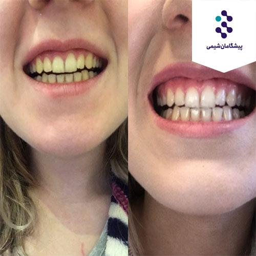 فرمول خمیر دندان ضد پلاک