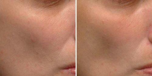6 دلیل که نیاسینامید را باید در برنامه مراقبت از پوست خود وارد کنید