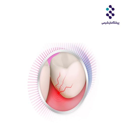 فرمول خمیر دندان برای لثه حساس