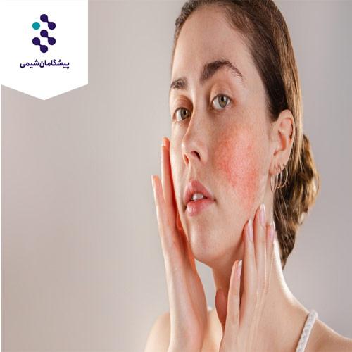فرمولاسیون کرم ضد التهاب