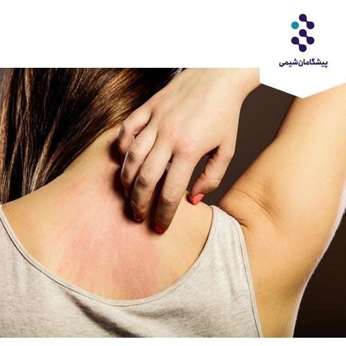 فرمولاسیون کرم کنترل کننده خارش و تسکین دهنده پوست