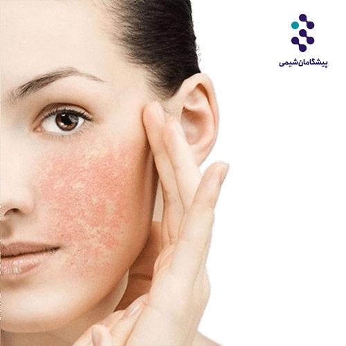 فرمولاسیون لوسیون تقویت کننده پوست حساس