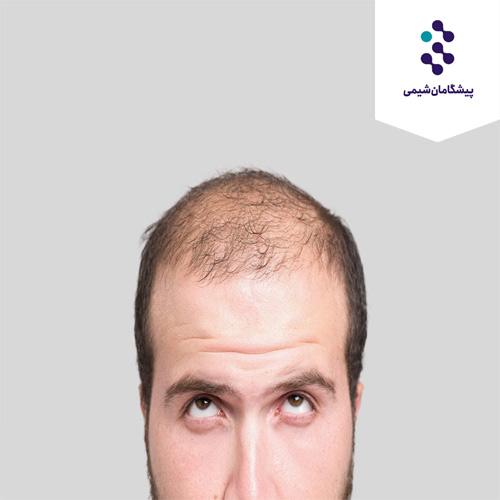 فناوری رشد مو