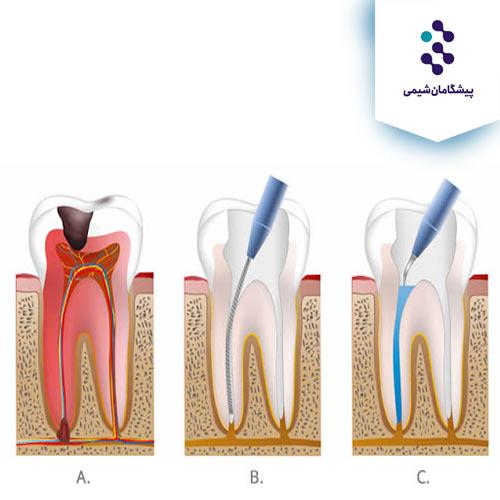 کاربرد edta در دندانپزشکی
