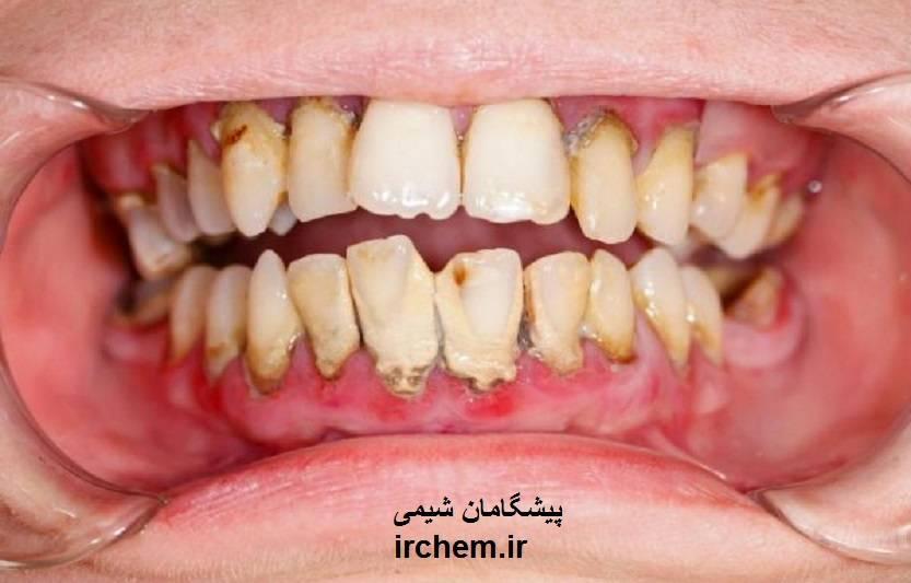 ماده جلوگیری از پلاک دندان